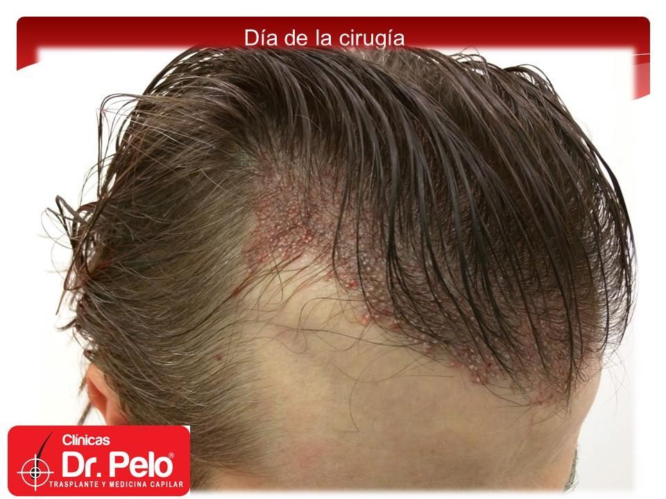 [Imagen: injerto-capilar-tecnica-fue-dr-pelo-afon...ior-05.jpg]