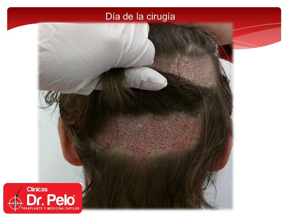 [Imagen: injerto-capilar-tecnica-fue-dr-pelo-afon...ior-06.jpg]