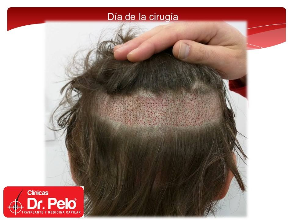 [Imagen: injerto-capilar-tecnica-fue-dr-pelo-afon...ior-07.jpg]