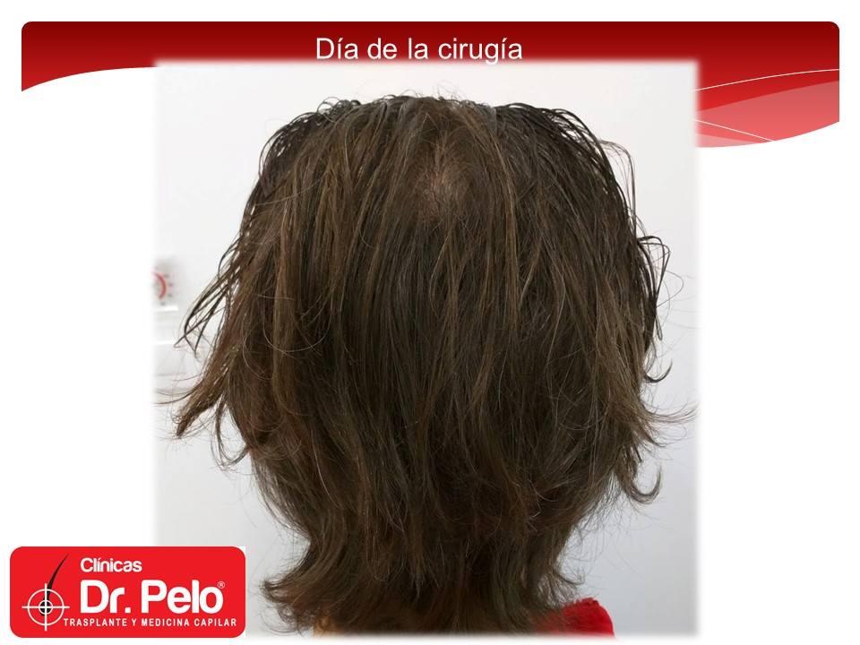 [Imagen: injerto-capilar-tecnica-fue-dr-pelo-afon...ior-08.jpg]