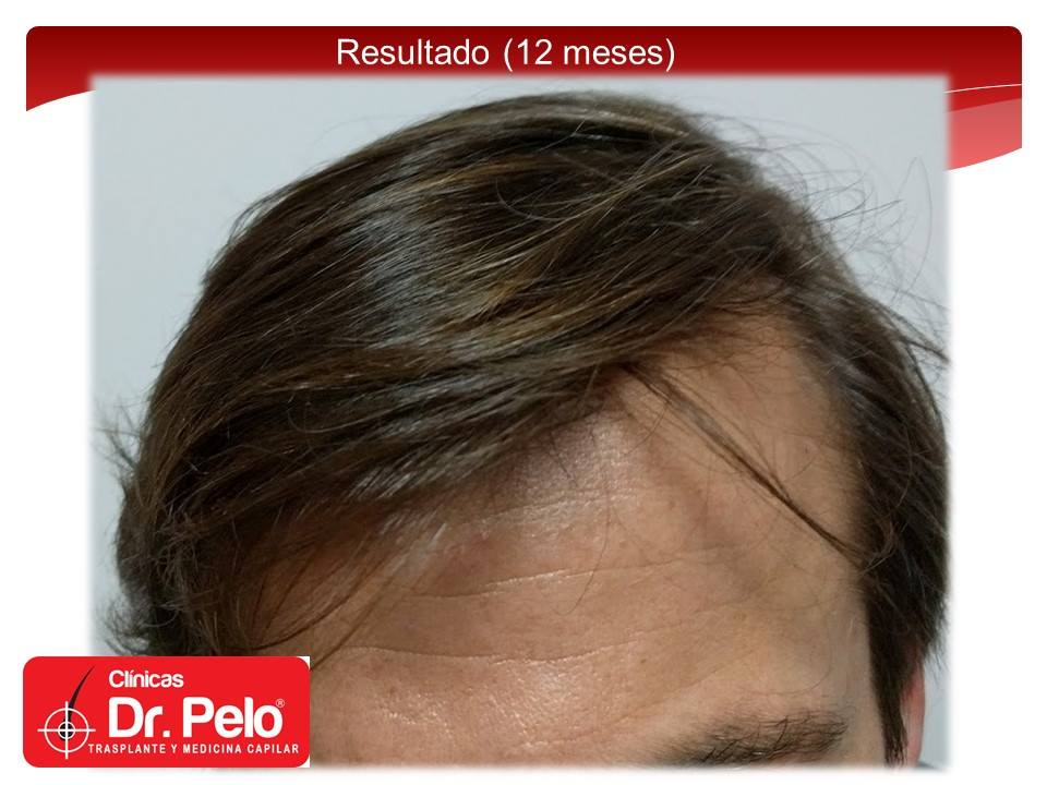 [Imagen: injerto-capilar-tecnica-fue-dr-pelo-afon...ior-09.jpg]