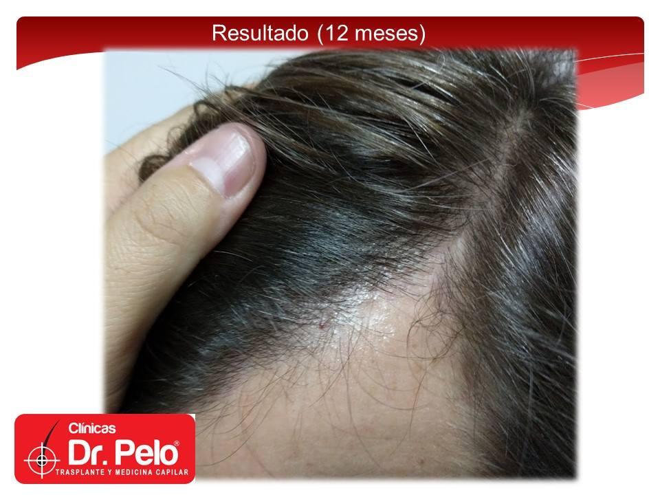 [Imagen: injerto-capilar-tecnica-fue-dr-pelo-afon...ior-11.jpg]