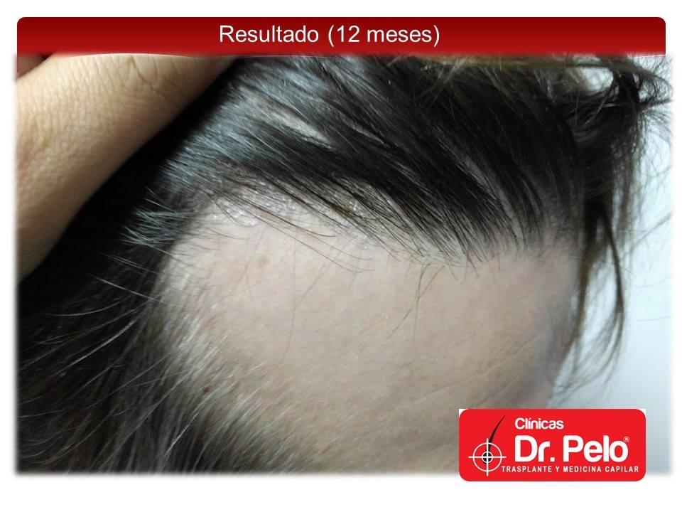 [Imagen: injerto-capilar-tecnica-fue-dr-pelo-afon...ior-14.jpg]
