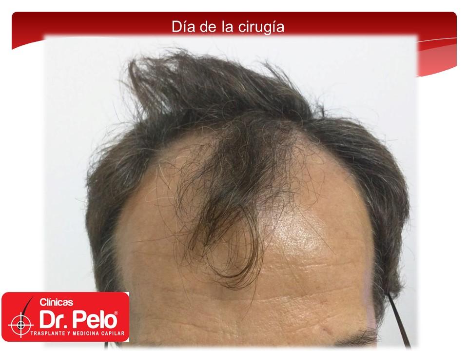 [Imagen: injerto-capilar-1.JPG]