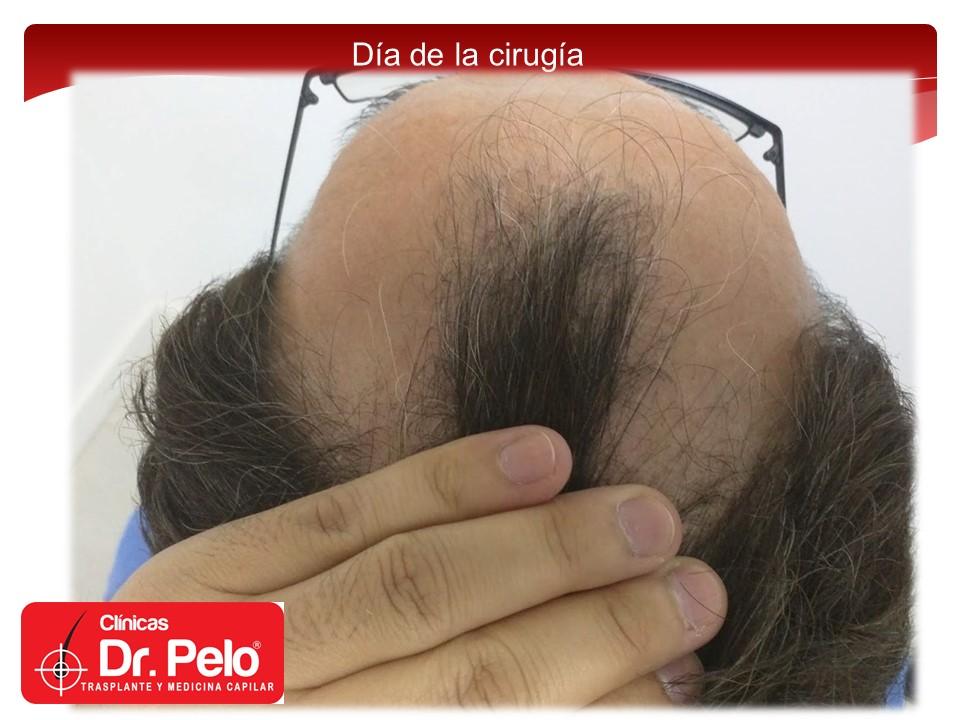 [Imagen: injerto-capilar-3.JPG]