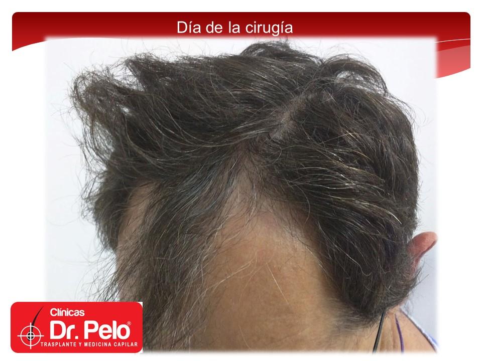 [Imagen: injerto-capilar-4.JPG]