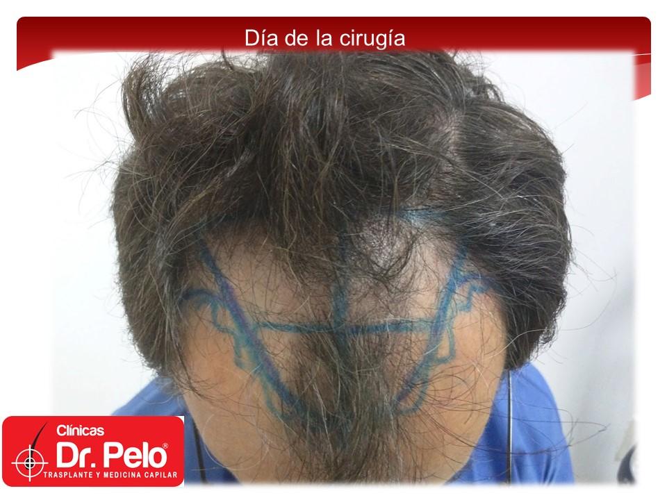 [Imagen: injerto-capilar-5.JPG]