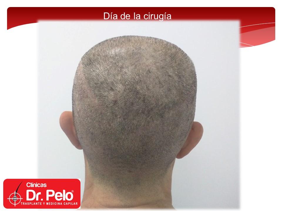 [Imagen: injerto-capilar-7.JPG]