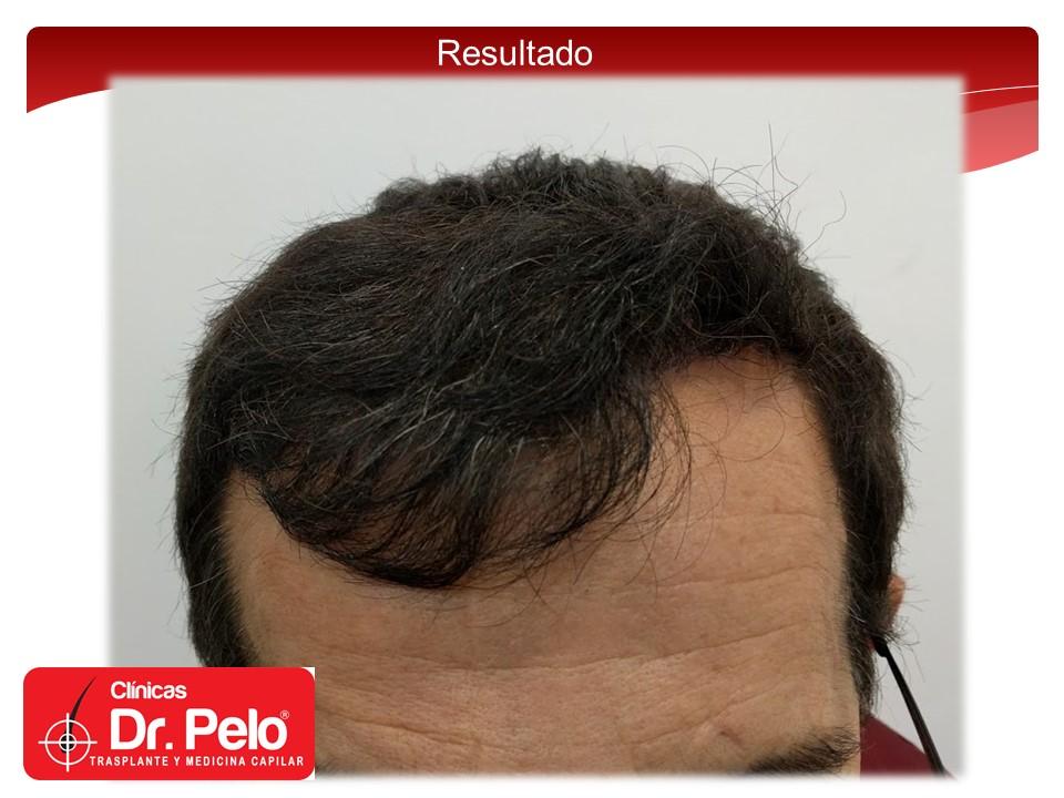 [Imagen: injerto-capilar-8.JPG]