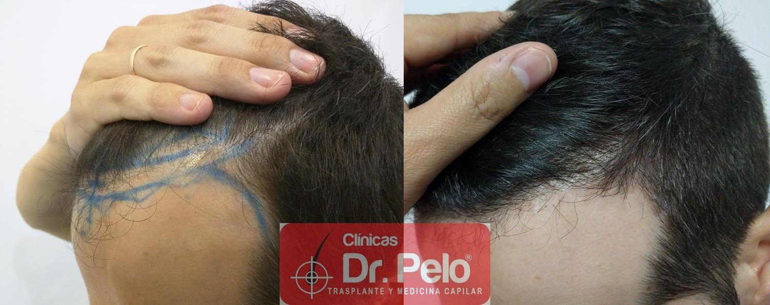 [Imagen: tratamiento-capilar-clinicas-dr-pelo-junior-30.jpg]