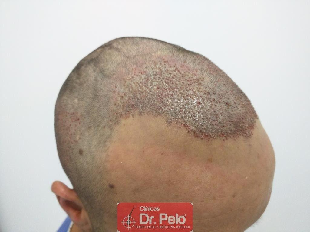 [Imagen: Cirugia-capilar-FUE-10.jpg]
