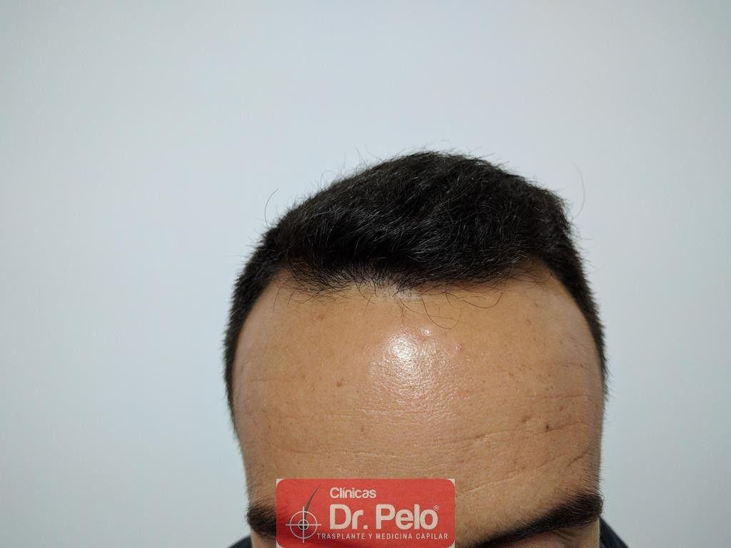 [Imagen: Cirugia-capilar-FUE-11.jpg]