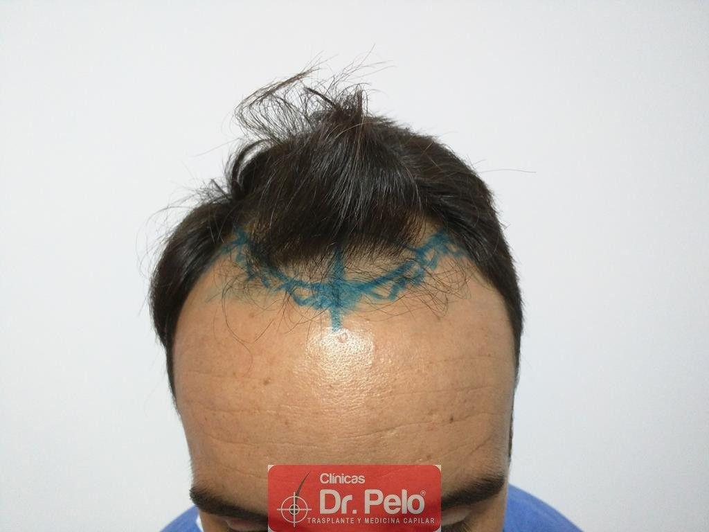 [Imagen: Cirugia-capilar-FUE-2.jpg]