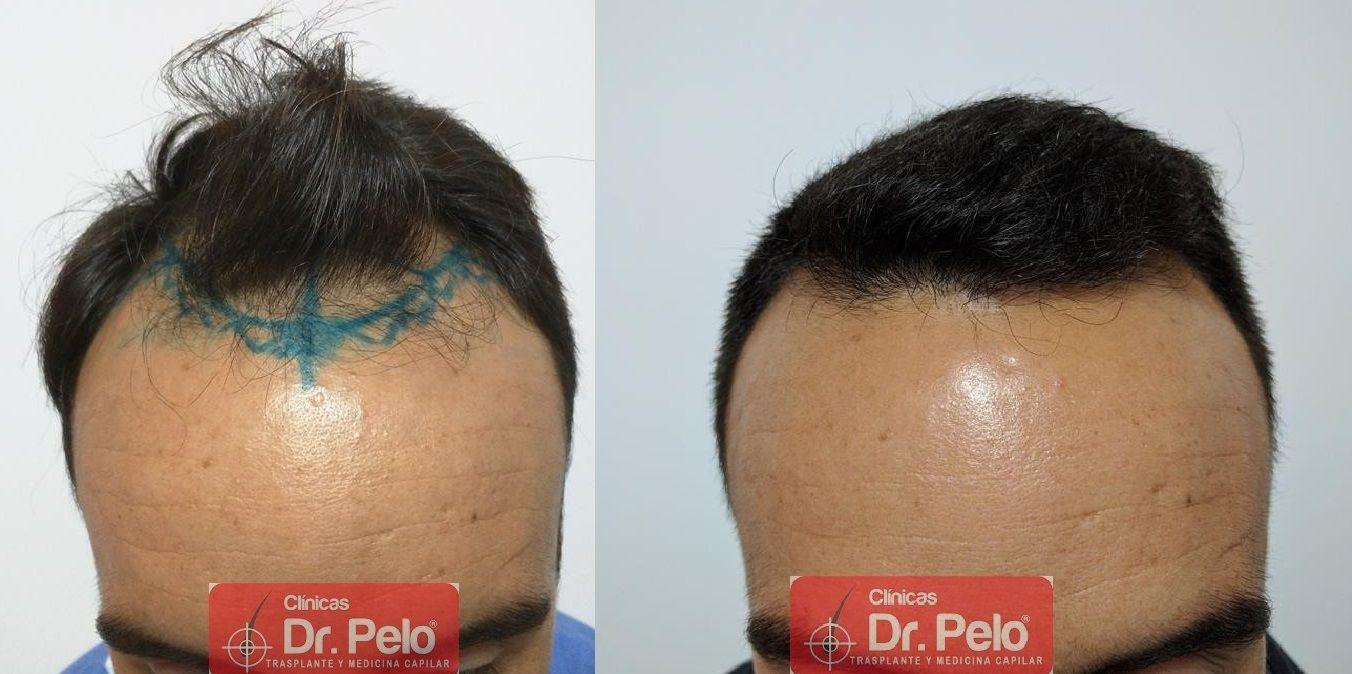 [Imagen: Cirugia-capilar-FUE-20.jpg]