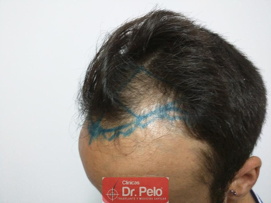 [Imagen: Cirugia-capilar-FUE-4.jpg]