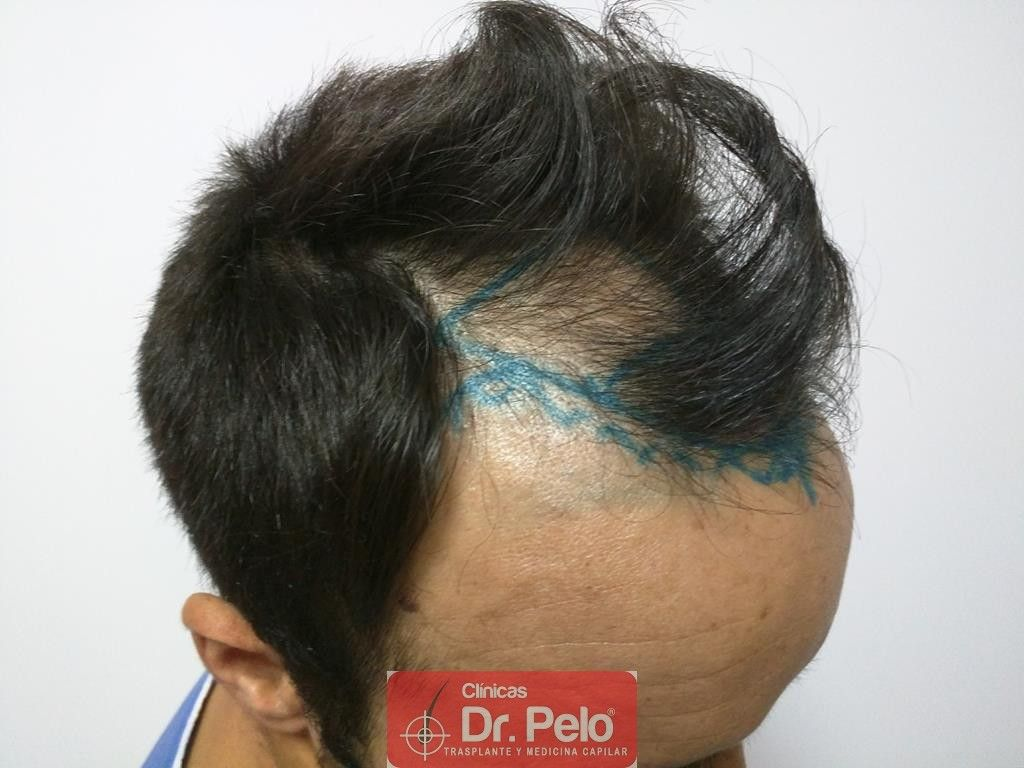 [Imagen: Cirugia-capilar-FUE-6.jpg]