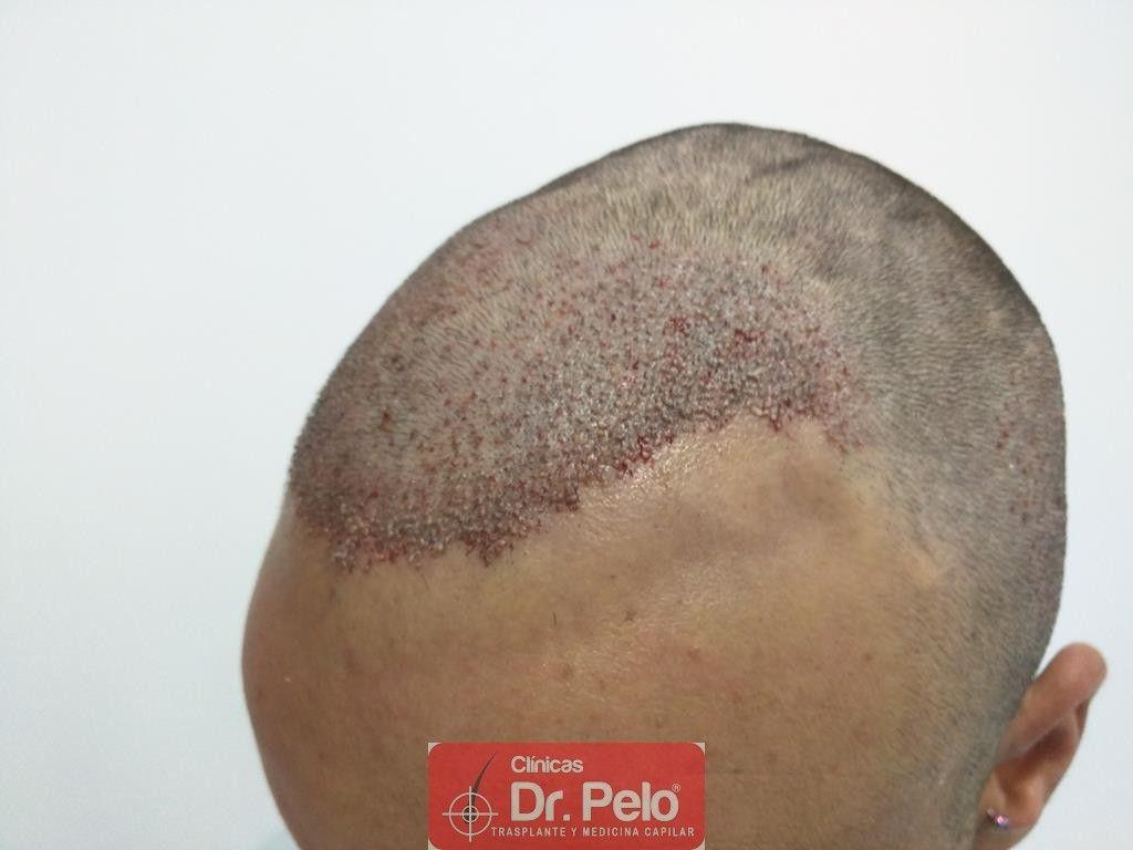 [Imagen: Cirugia-capilar-FUE-7.jpg]
