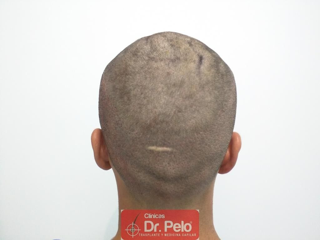 [Imagen: Cirugia-capilar-FUE-8.jpg]