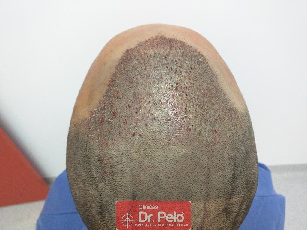 [Imagen: Cirugia-capilar-FUE-9.jpg]