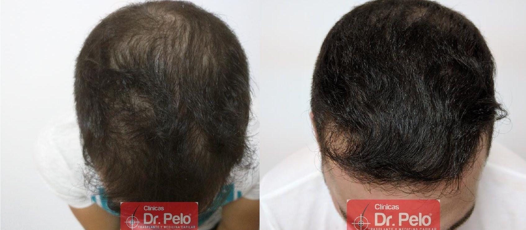 [Imagen: Tratamiento-capilar-mesoterapia-ledhair-21.jpg]