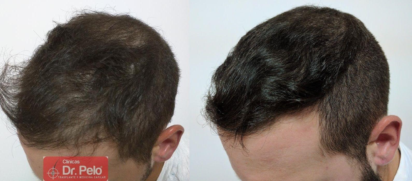 [Imagen: Tratamiento-capilar-mesoterapia-ledhair-23.jpg]
