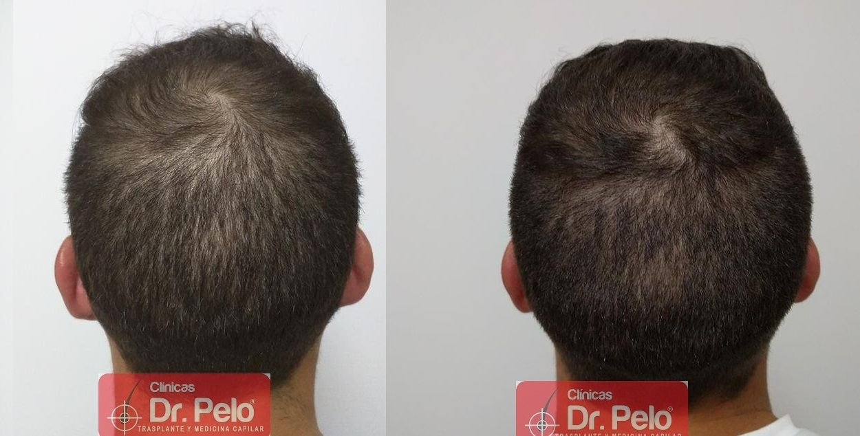 [Imagen: Tratamiento-capilar-mesoterapia-ledhair-24.jpg]
