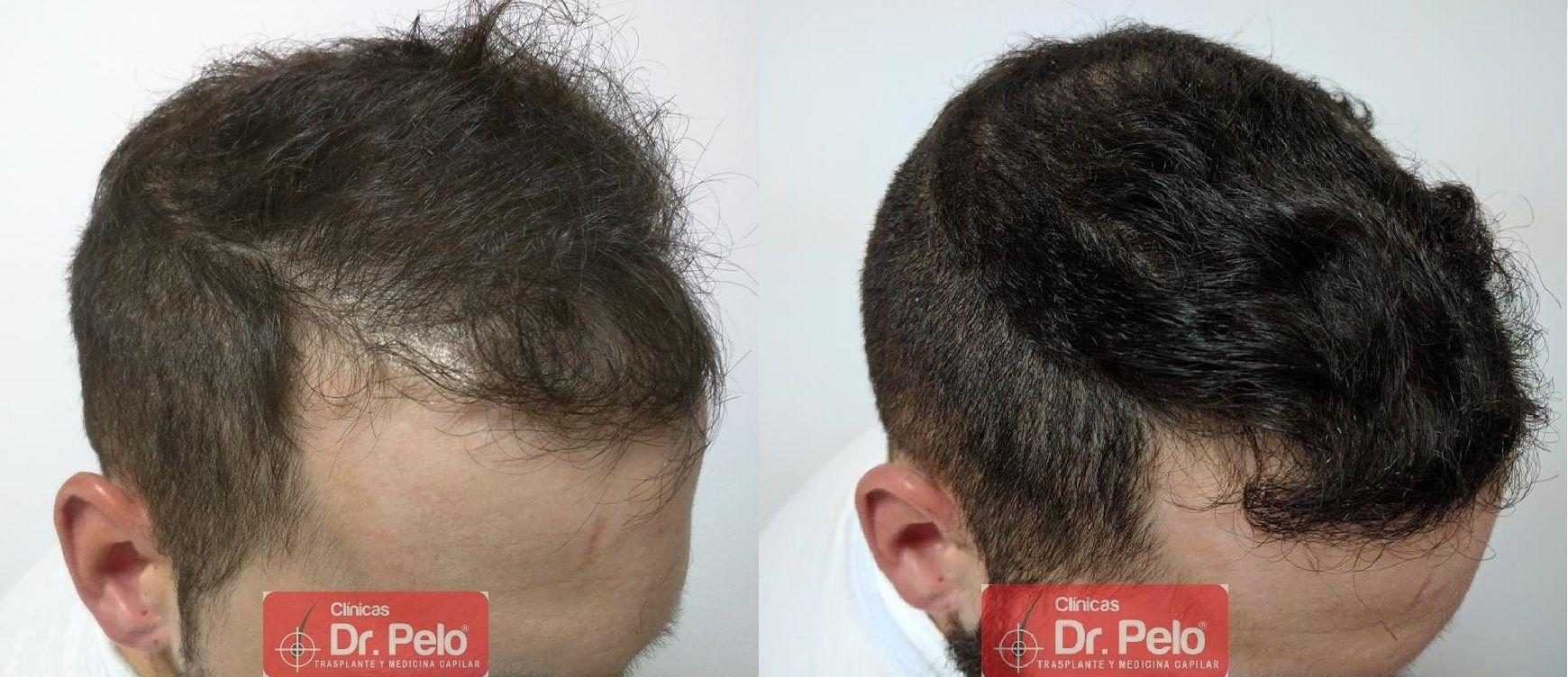[Imagen: Tratamiento-capilar-mesoterapia-ledhair-25.jpg]