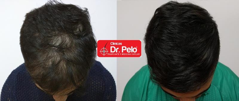 [Imagen: injerto-capilar-fue-clinica-dr-pelo.jpg]