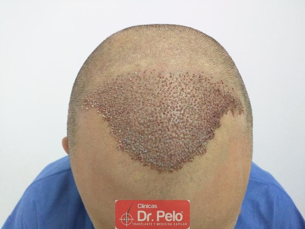 [Imagen: injerto-capilar-tecnica-fue-tratamiento-...air-11.jpg]