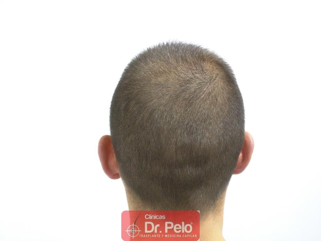 [Imagen: injerto-capilar-tecnica-fue-tratamiento-...hair-5.jpg]