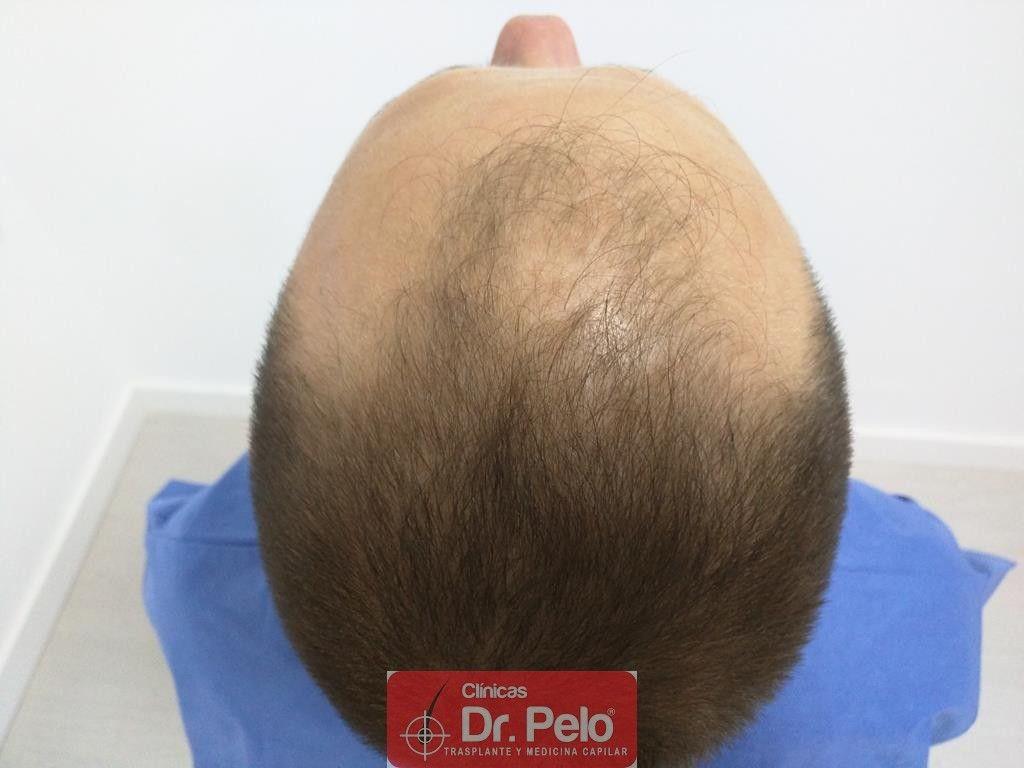 [Imagen: injerto-capilar-tecnica-fue-tratamiento-...hair-6.jpg]
