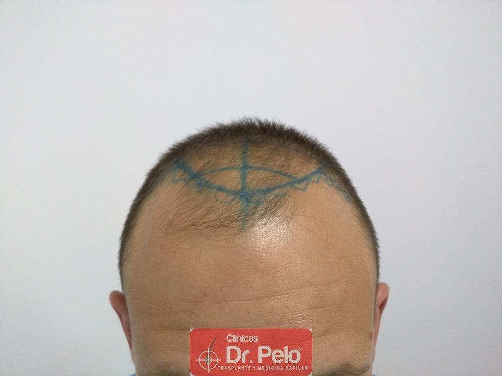 [Imagen: injerto-capilar-tecnica-fue-tratamiento-...hair-7.jpg]