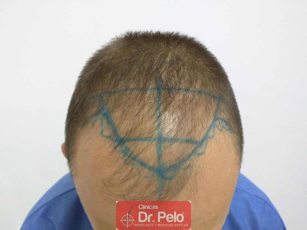 [Imagen: injerto-capilar-tecnica-fue-tratamiento-...hair-8.jpg]