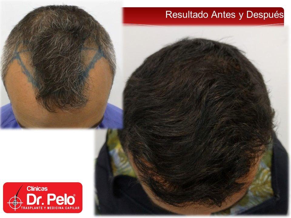 [Imagen: resultado-clinica-dr-pelo-injerto-capilar.jpg]