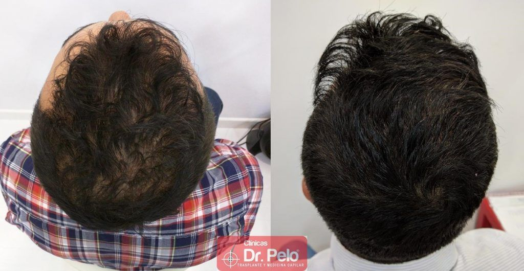 [Imagen: tratamiento-capilar-10-3-1024x530.jpg]