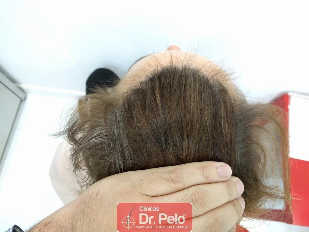 [Imagen: tratamiento-capilar-11-1.jpg]