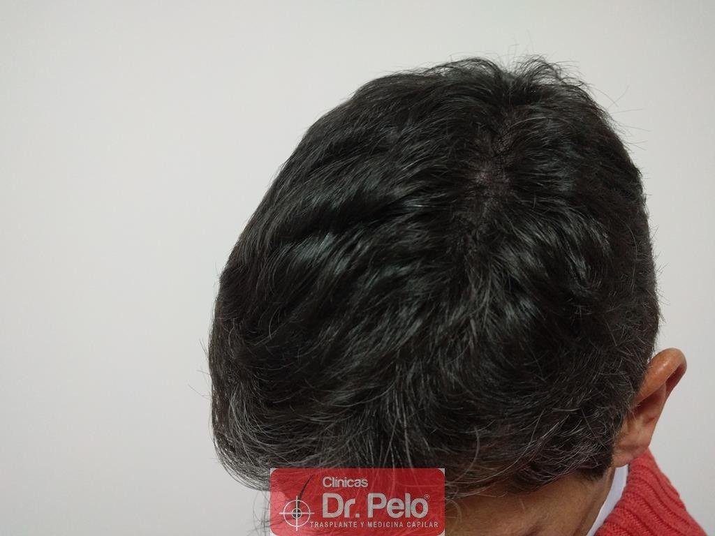 [Imagen: tratamiento-capilar-12-2.jpg]