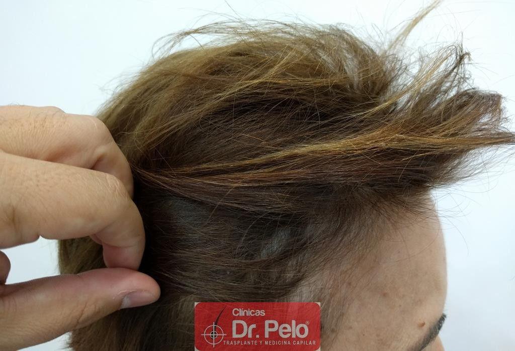 [Imagen: tratamiento-capilar-12.jpg]
