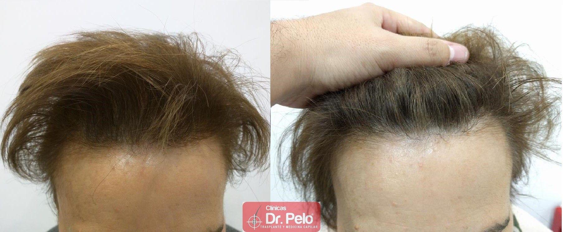 [Imagen: tratamiento-capilar-13.jpg]