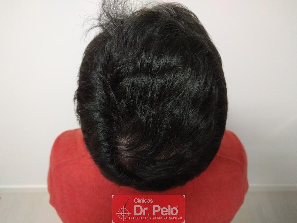 [Imagen: tratamiento-capilar-14-2.jpg]