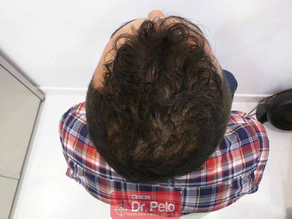 [Imagen: tratamiento-capilar-2-2.jpg]