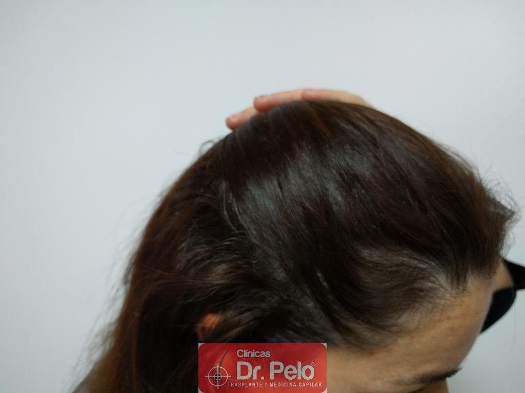 [Imagen: tratamiento-capilar-4-4.jpg]