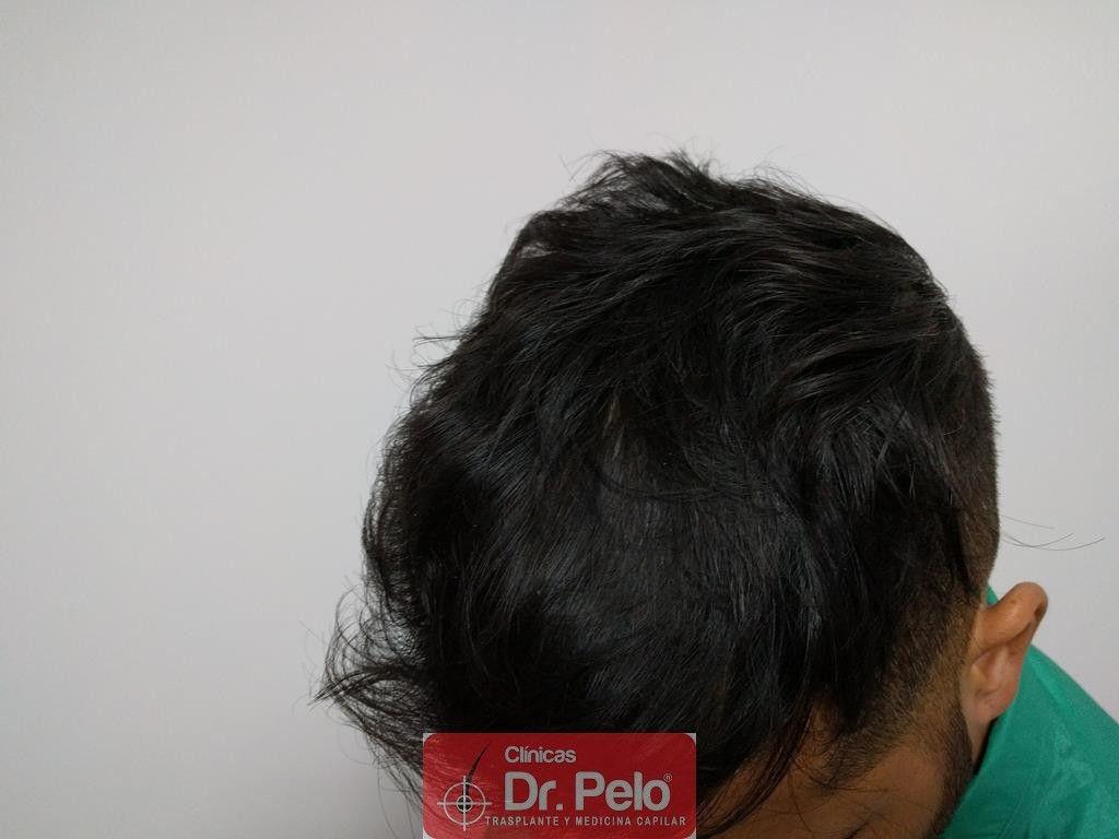 [Imagen: tratamiento-capilar-5.jpg]