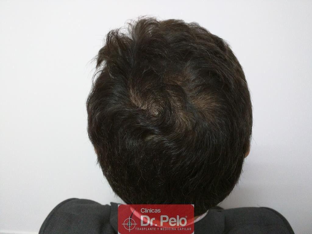 [Imagen: tratamiento-capilar-6-6.jpg]