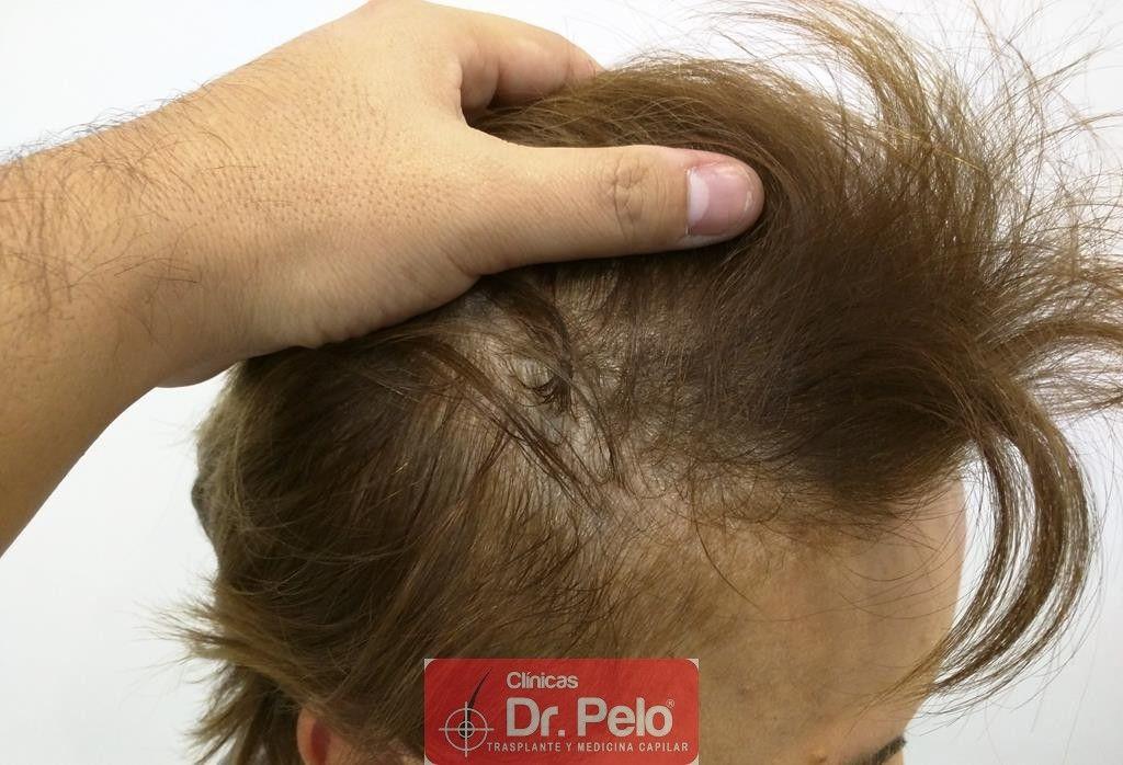 [Imagen: tratamiento-capilar-7-2.jpg]