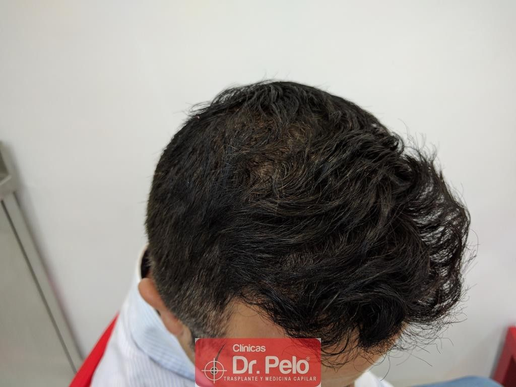 [Imagen: tratamiento-capilar-7-3.jpg]