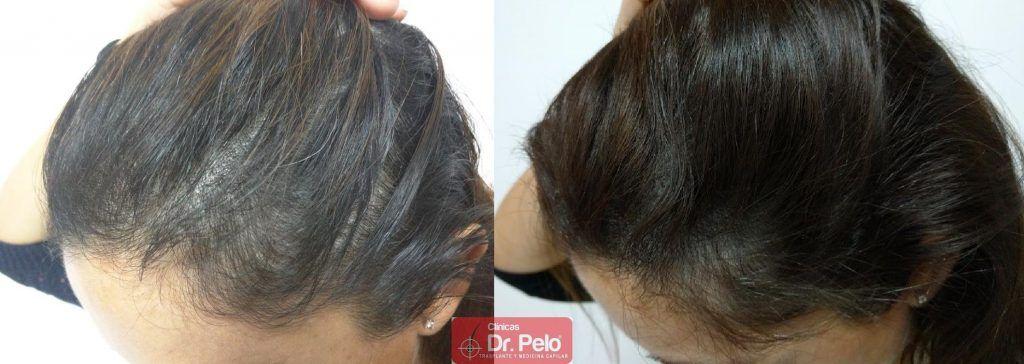 [Imagen: tratamiento-capilar-9-4-1024x364.jpg]