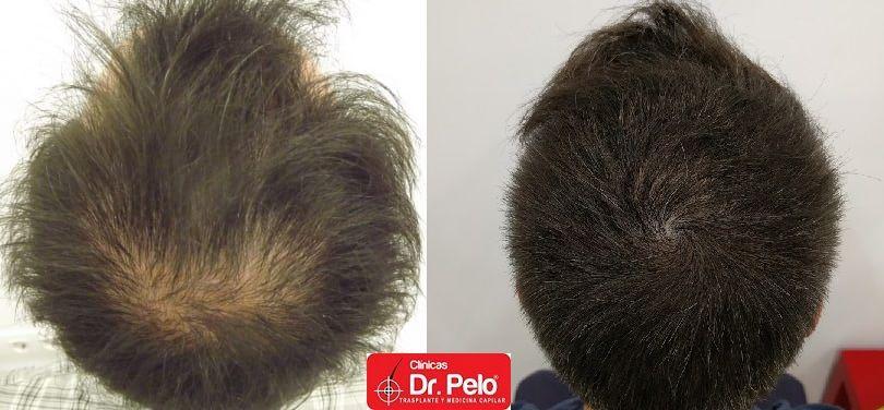 [Imagen: tratamiento-capilar-centro-capilar-dr-pelo-18-1-1.jpg]