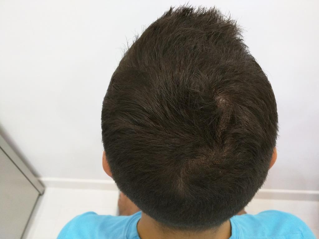 [Imagen: tratamiento-capilar-mesoterapia-ledhair-10.jpg]