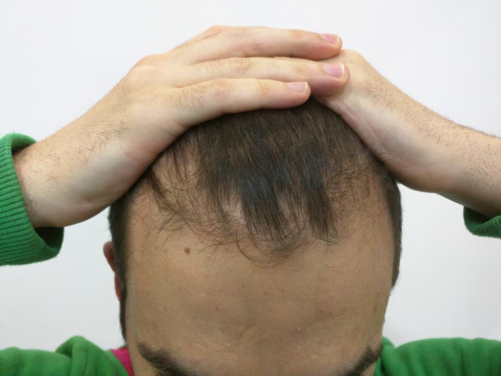 [Imagen: tratamiento-capilar-mesoterapia-ledhair-2.jpg]